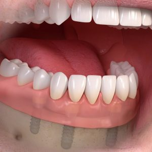 removable_denture_with_lxxx_attachement_04