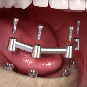 removable_denture_with_bar_02