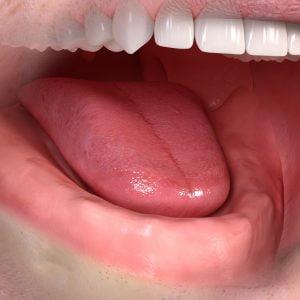 removable_denture_with_lxxx_attachement_01