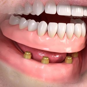 removable_denture_with_lxxx_attachement_03