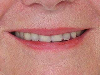Gallery Taunton | Dentures Taunton | False Teeth